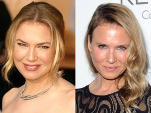 renee-zellweger-before-after